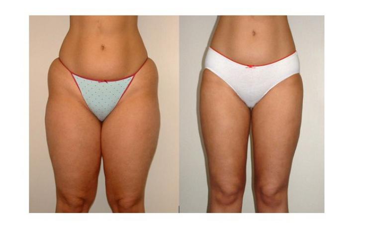 interval pentru pierderea de grăsime greutate pierdeți gabourey sidibe