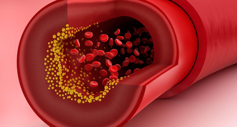 Colesterolul - ce este, care este nivelul optim, ce ai de făcut dacă valorile sunt prea mari