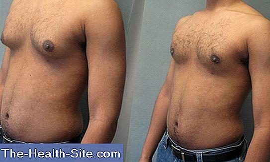 va duce la pierderea de grăsime ajuta la gyno Pierderi în greutate povești de succes 2020de kilograme