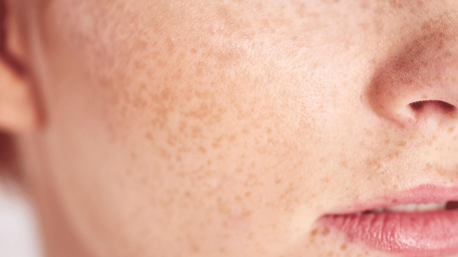 Informații esențiale despre piele sensibilă | BIODERMA