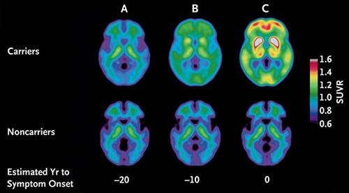 demența de pierdere în greutate alzheimer