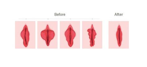 pierderea in greutate a labiilor