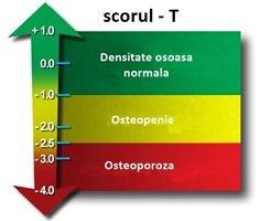 pierderea în greutate densitatea osoasă