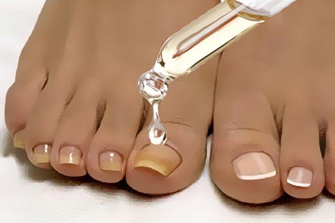 slăbire flip-flops)