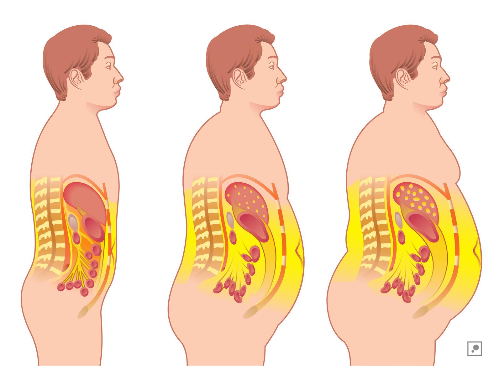 Cum să pierzi grăsimea internă a coapsei 2020 - The healthy post