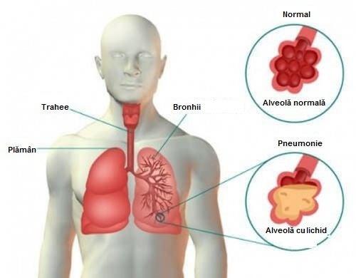 Pneumonie – simptome, cauze, tratament – alegsatraiesc.ro