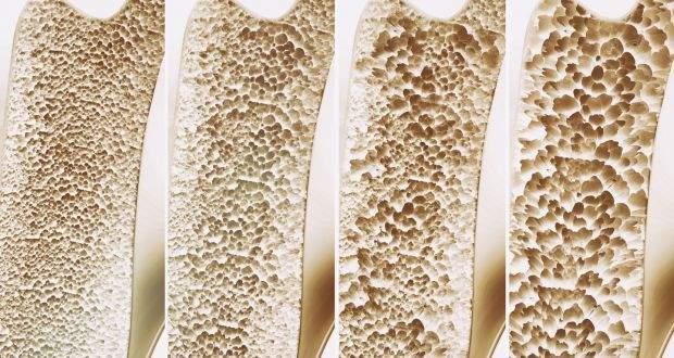 Cum va puteti mentine oasele sanatoase pentru a evita dezvoltarea osteoporozei