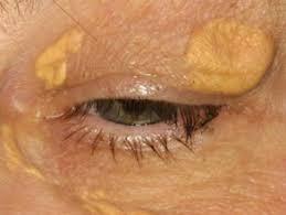 Tulburare templu și ochi: cauze, tipuri de durere și metode de tratament