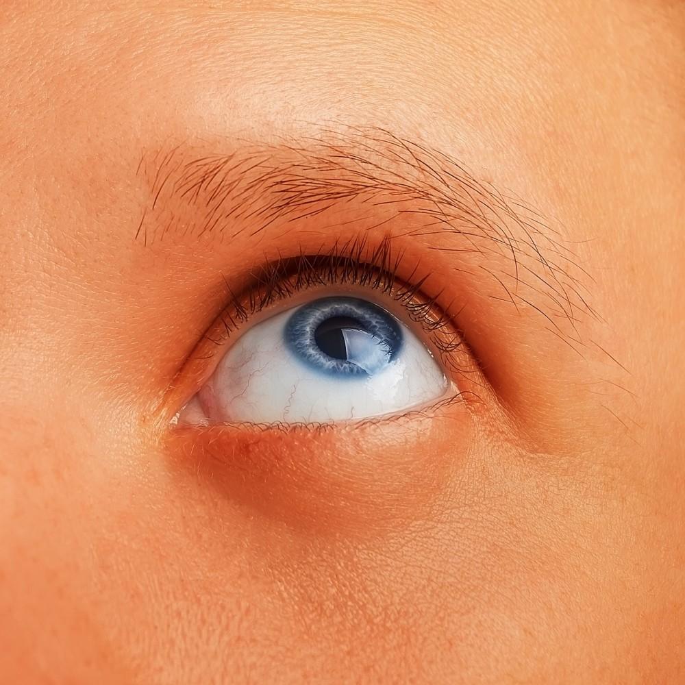 Calcifierile oculare - CENTRUL DE CERCETARE NUTRICEUTICA