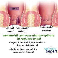 pierderea în greutate a hemoroizilor interni)
