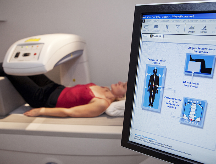"Osteoporoza – boala ""silentioasa"" la care trebuie sa fim atenti | alegsatraiesc.ro"