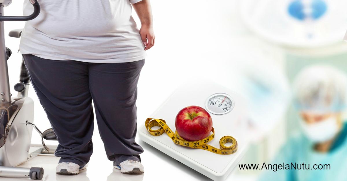 Pierderea in greutate pe cale chirurgicala sau chirurgia obezitatii