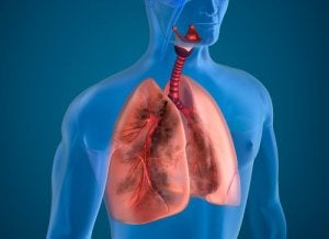 Mezoteliomul Pleural | Pacient cancer