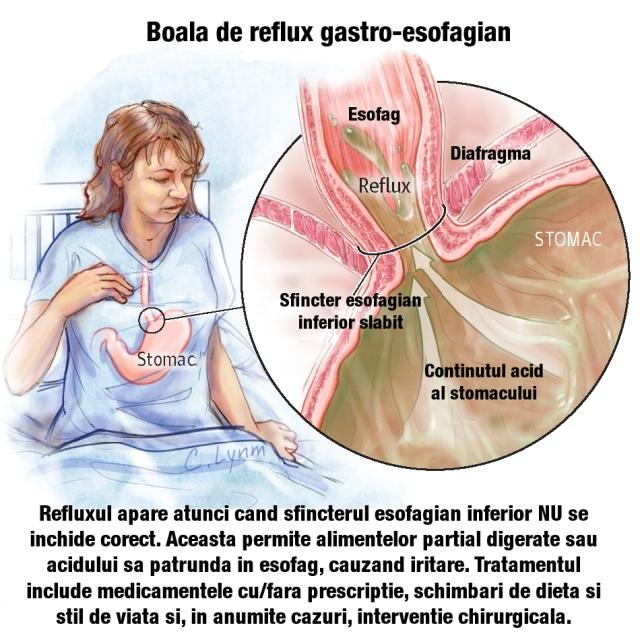 scădere în greutate și esofag de barret
