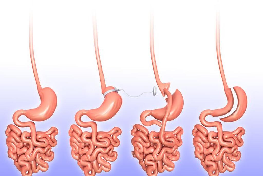 alte intervenții chirurgicale pentru pierderea în greutate