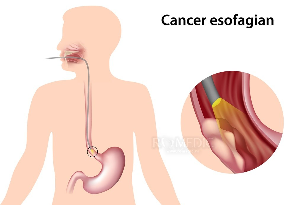 scădere în greutate și esofag de barret)