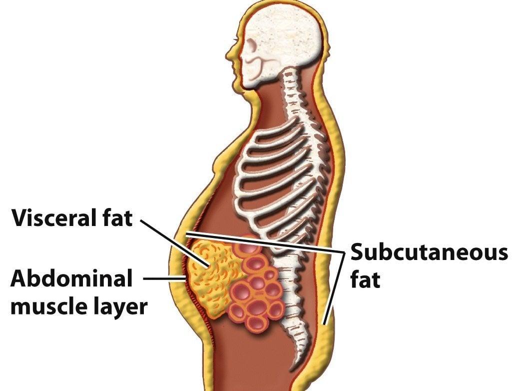cum să îndepărtați corpul de grăsime din corp