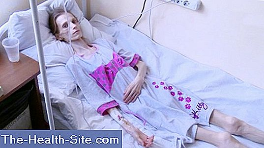 simptome pierderea poftei de mâncare și pierderea în greutate)