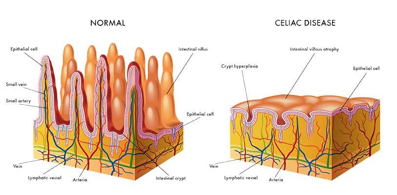 simptome celiace pierderea în greutate cum arde grăsime acasă