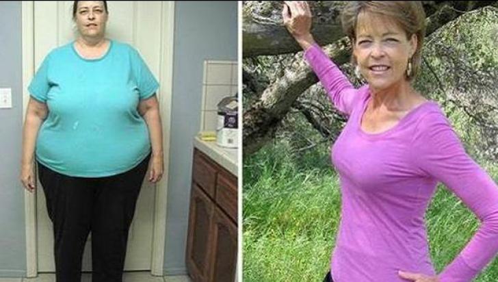 """O femeie părăsită de soț pentru că era """"prea grasă"""" a ajuns acum o adevărată bombă sexy"""