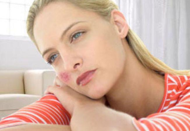 Poți pierde în greutate cu lupus