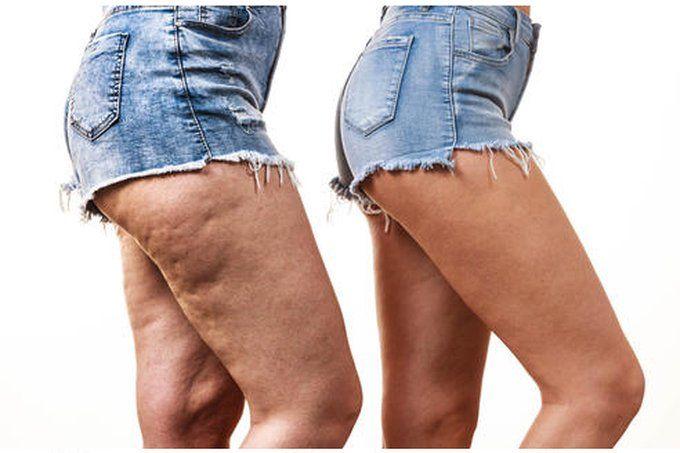 pierderea in greutate scapa de celulita)
