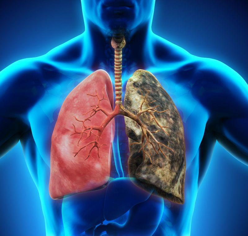 Pleureziile (revărsatele pleurale): diagnostic și tratament – alegsatraiesc.ro
