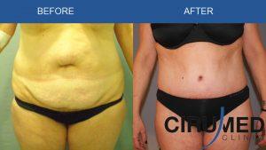 Agenții de scădere în greutate tummy tuck)
