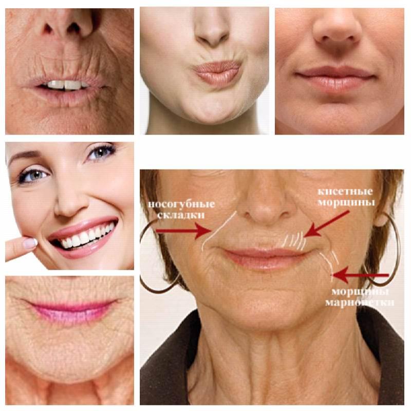 cum să elimini grăsimea inferioară a buzelor)