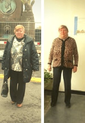 Cati kg pentru gradul 3 de obezitate?