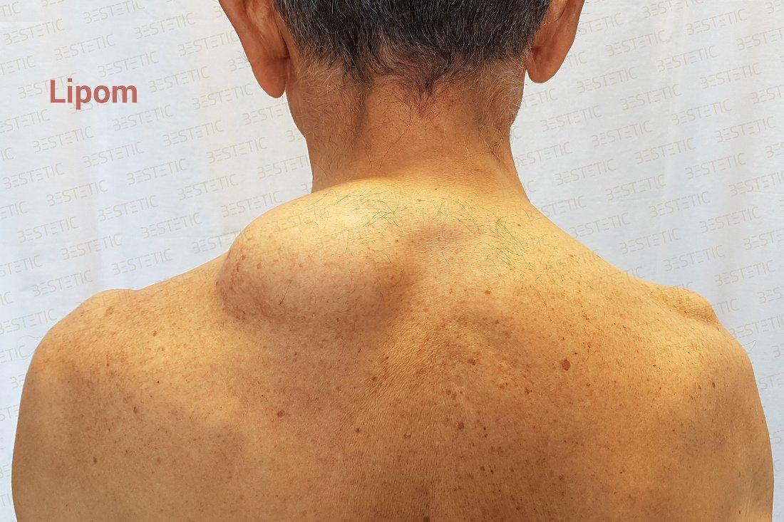 Vibrolipoaspiratia (Lipoaspiratia)
