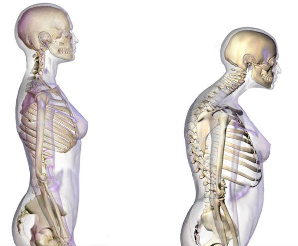 osteoporoza pierde în greutate)