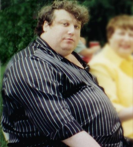 pierde grăsime deasupra cotului cea mai bună pierdere în greutate pentru omul obez