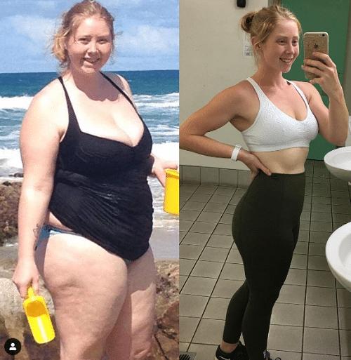 O femeie de 235 de kilograme pierde în greutate)