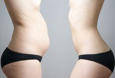 grăsime pe kilogram pentru pierderea în greutate)