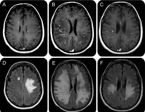 Scleroza multipla diagnostic
