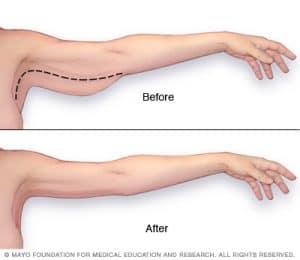 operație de slăbire a corpului
