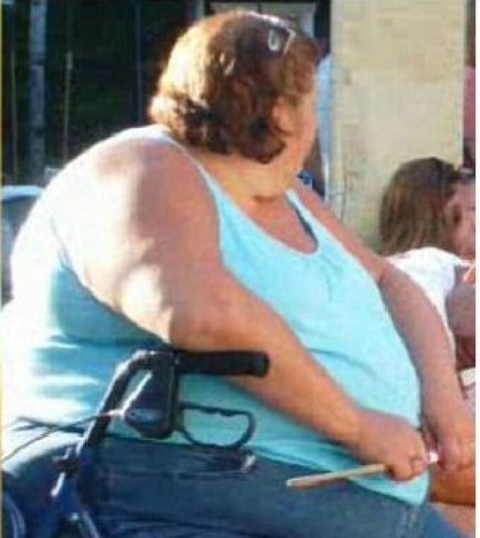 Incredibil: Uite cât au slăbit! Cazuri şocante de pierdere în greutate