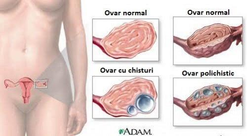 scădere în greutate cu chist ovarian