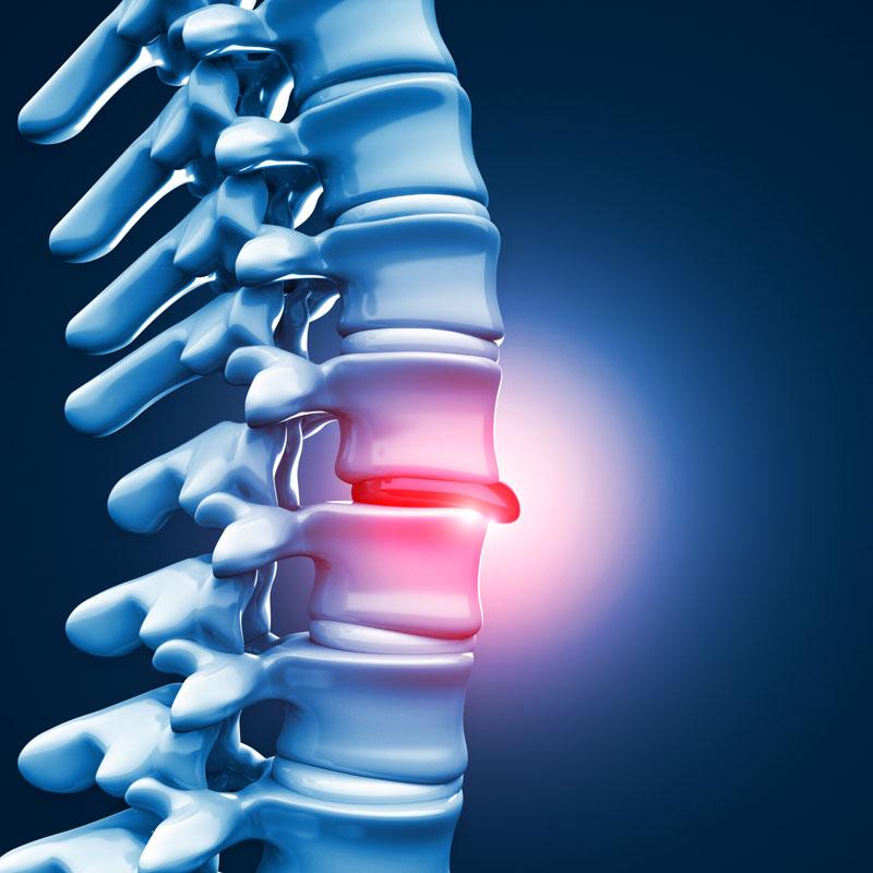va scădea în greutate ajută stenoza coloanei vertebrale
