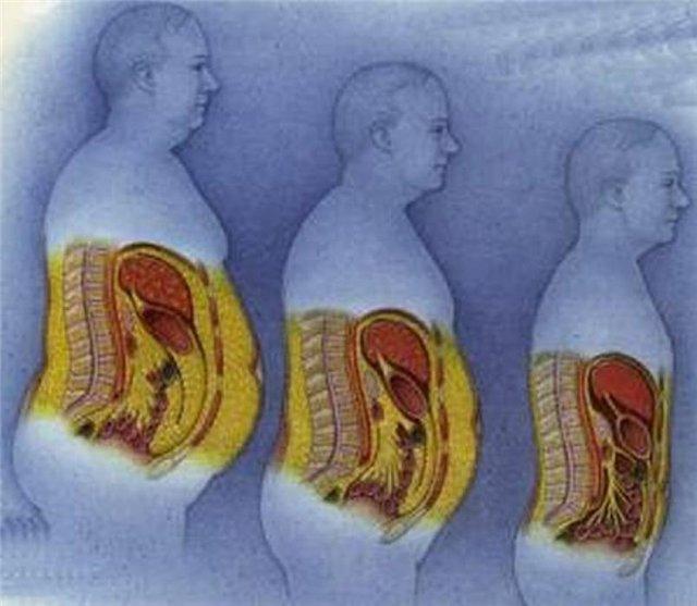 Cum vă puteţi da seama că aveţi grăsime între organele interne - alegsatraiesc.ro
