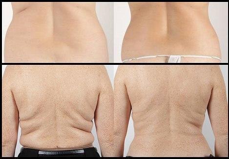scădere în greutate cu mms)