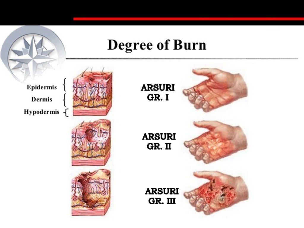ce înseamnă arsuri de grăsime