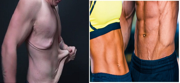Grăsimea ucide: 8 moduri prin care excesul de greutate poate provoca decesul