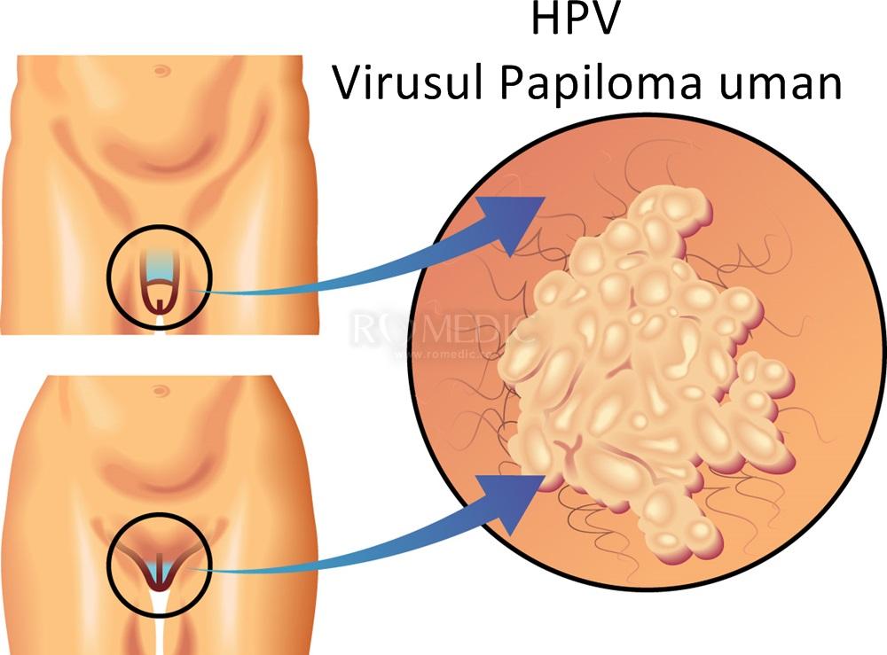 scădere în greutate din cauza HPV