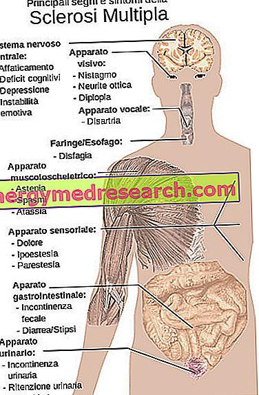 puteți slăbi cu scleroză multiplă)