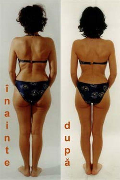 scară de scădere în greutate penn jillette Pierdere în greutate veche de 5 luni