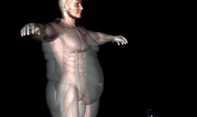persoană obeză pentru a pierde în greutate)