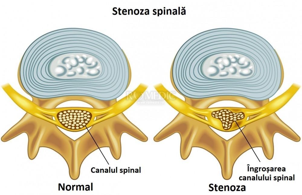 poate scădea în greutate ajută stenoza coloanei vertebrale)