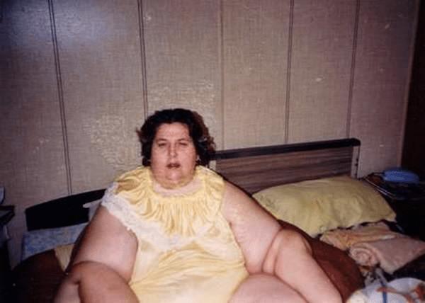 O femeie de 235 de kilograme pierde în greutate